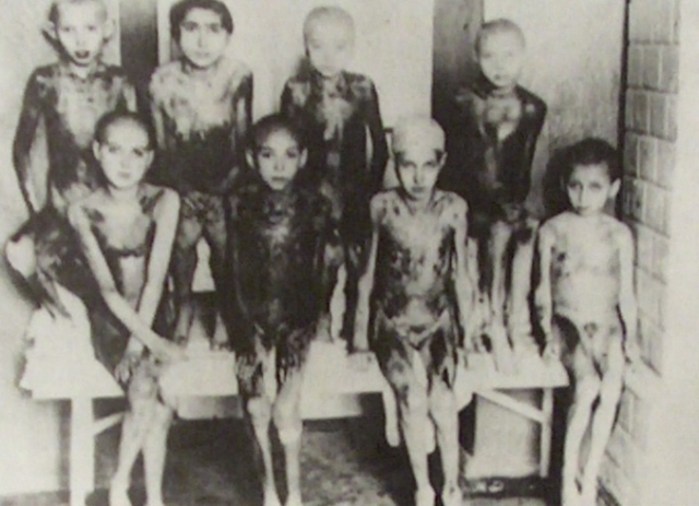 Witness to the holocaust children experimented upon at auschwitz